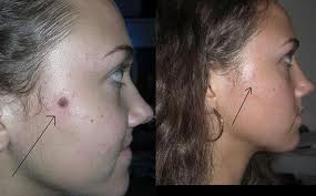 Home mole removal methods are they really that effective and safe there is no longer a need to sign yourself up for a surgery just so you can have all your moles removed the safe and easy removal of moles is even possible solutioingenieria Image collections